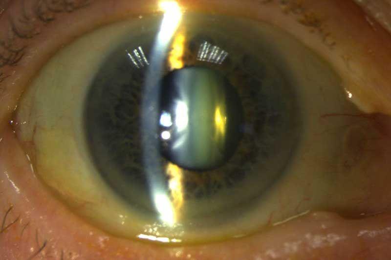 cataract-surgery-aug-mr-muneer-otri
